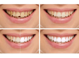 types of treatment covered in smile makeover
