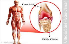 Osteosarcoma Background, Pathophysiology, Etiology, Symptoms, And Treatment