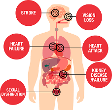 Blood Pressure Diagram What Is High Blood Pressure American Heart Association