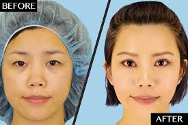Plastic surgery for asian eyes
