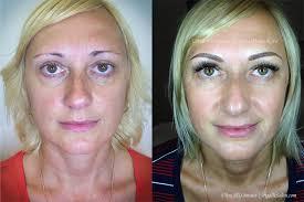 permanent make up eyebrow embroidery microneedling ultra hd brows by irina miasnikova
