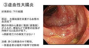 虚 血性 腸炎 と は