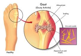 Indian Diet Plan For Gout What To Eat And Avoid In Gout