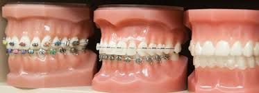 Dental Braces San Antonio Affordable Braces And Orthodontics