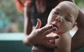 Zika virüsü Hindistan'da ortaya çıktı