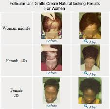 Male Or Female Pattern Baldness Treatments Delectable Female Pattern Hair Loss And Hair Transplants Hair Transplant Blog