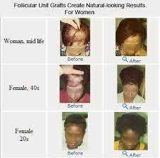 Female Pattern Hair Loss Interesting Female Pattern Hair Loss And Hair Transplants Hair Transplant Blog