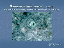 Тема Тип простейшие  Реферат Простейшие паразиты человека xreferat com