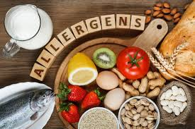 Food allergies: Symptoms, treatments, and causes