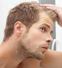 can low testosterone cause hair loss