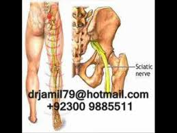 latest treatment for sciatica