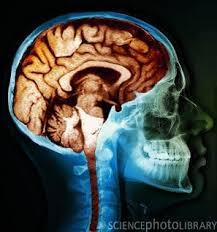 Image result for pictures of brain neglect