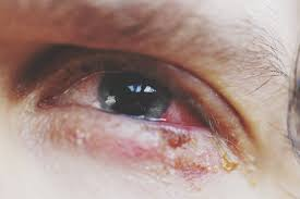 Photos and Symptoms of Common Food Allergy Symptoms