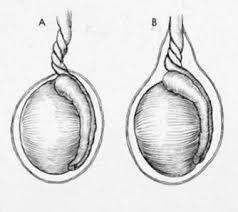 testicular torsion. testicular torsion: (a) extravaginal; (b) intravag torsion