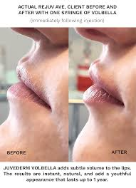 love your lips lip augmentation for