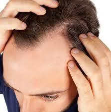 Trápí Vás Padání Vlasů A řídké Vlasy Máme řešení Hairfor2