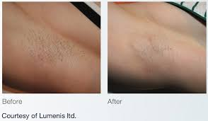laser treatment for tanned skin cost