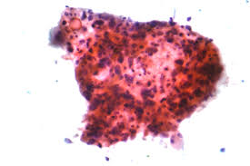 small cell lung cancer writework micrograph of squamous carcinoma a type of non small cell carcinoma fna