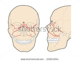 Le Fort Fracture Lefort Fracture Of Skull Stock Images Royalty Free Images Vectors