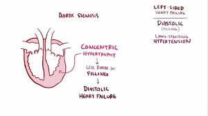 Pathophysiology Of Chf Heart Failure Hf Cardiovascular Disorders Merck Manuals