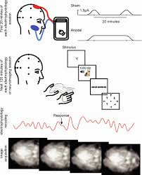 Tens Electrode Placement Chart Using Transcranial Direct