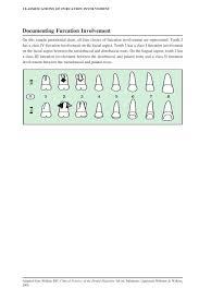 Classifications Of Furcat