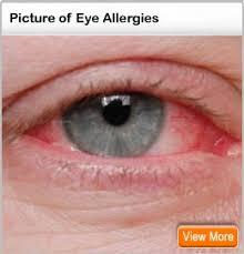 eye allergy symptoms eye discharge