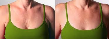 best treatment for chest wrinkles
