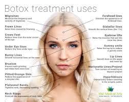 Botox Unit Diagram Botox Injection Sites Forehead Botox
