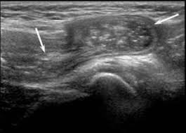 testicular hernia ultrasound. a 31-year-old man with right inguinal hernia containing bowel loops. longitudinal sonography shows multiple peristaltic loops in the testicular ultrasound h