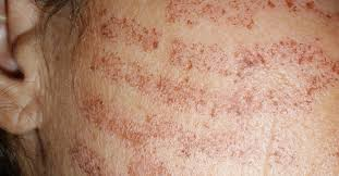 pain relief after laser hair removal