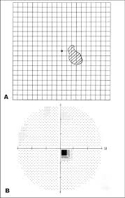 Amsler Chart Working Distance A Amsler Chart And B Humphreys Static Perimetry Showing A