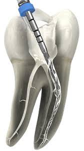 Wurzelbehandlung Frankfurt - Endodontie - Zahnarzt Padilla