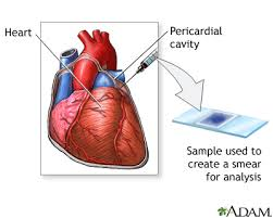 pericardial sac seenso