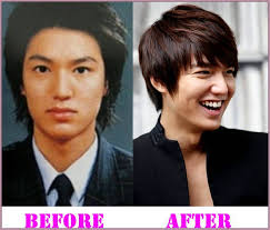 lee min ho plastic surgery before and after lee min ho plastic surgery leeminho