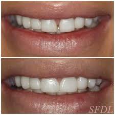 Dental Smile Design Albuquerque Before And After Veneers Chicago Sugarfixdentalloft