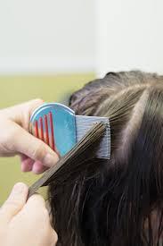 5 common myths ociated with head lice