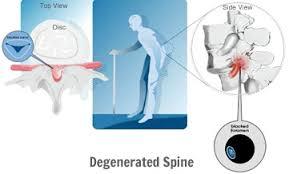 spinale stenose symptomen