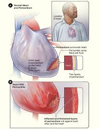 Pericardial Effusion What Is It And What Are The Symptoms