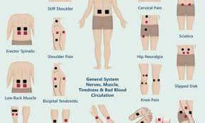 Tens Machine Pad Placement Chart 43 Disclosed Tens Electrode Placement Chart Pdf