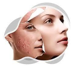 Acne behandeling - Streutker Mediskin
