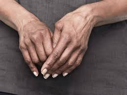 treatment for rheumatoid arthritis in hands