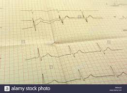 Eggor Ecg Paper The Ecg Is The Result Of Stress Test And Pink Heart