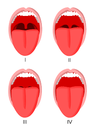 Tonsil Size Chart Mallampati Score Wikipedia