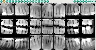 Dental X Rays How To Tell If You Have A Cavity Fridley Mn