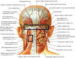 Achterhoofd hoofdpijn