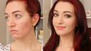 how to cover acne ring redness you