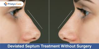 deviated septum treatment without
