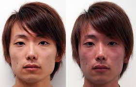 people blushing. a condition called \u0027asian flush\u0027 happens to certain people of asian descent after they have consumed alcohol. the red blush, shown on right, is result blushing