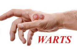 home remes for warts getatoz